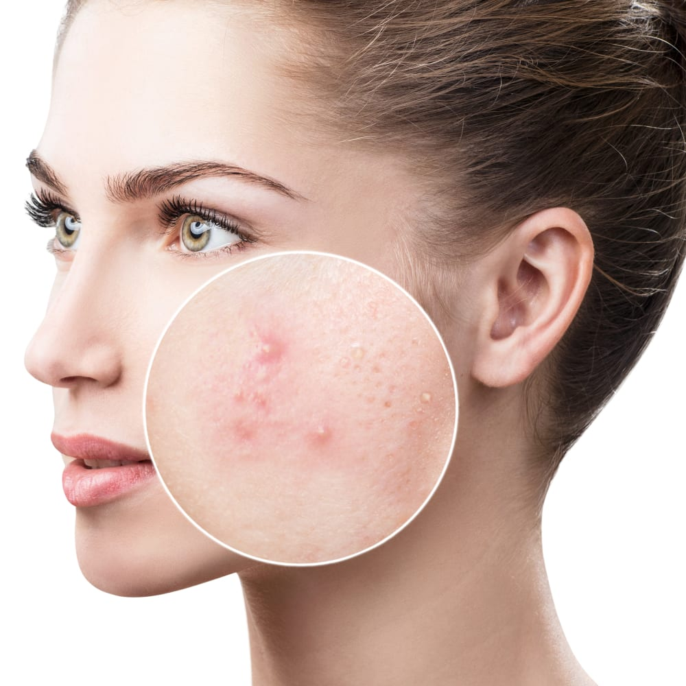 How Much L-Lysine For Acne Do You Need?